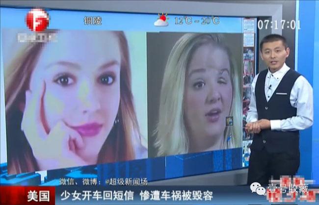 美国车祸毁容女孩拍视频警醒世人